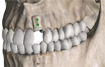 greffe osseuse apposition 3D